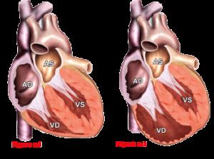 Cardiomiopatia aritmogena
