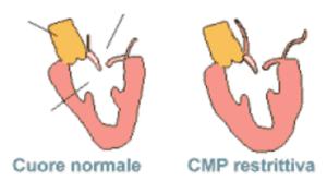 Cardiomiopatia Restrittiva