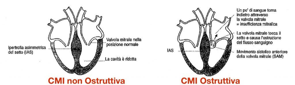 CMI Ostruttiva
