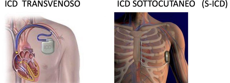 Defibrillatori impiantabili